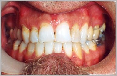 dentist Rocky River, OH Home